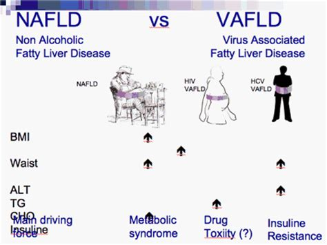common variable immunodeficiency fatty liver picture 5