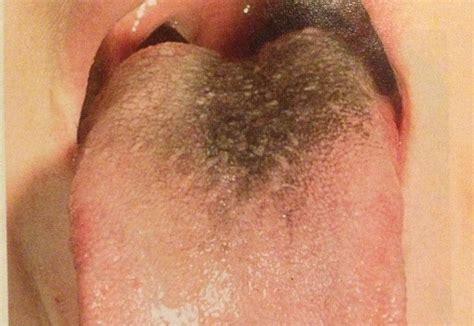 brown h thrush yeast picture 3
