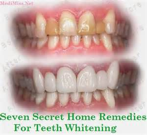 homemade h whitening picture 3