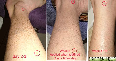 sunburn pain relief picture 5