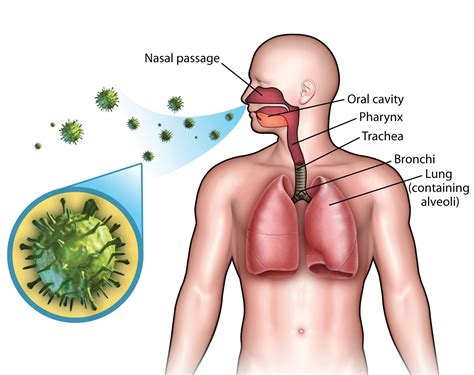 ill workcool that will workbacterial lung infection picture 11