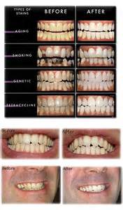 before and after teeth whitenint picture 13