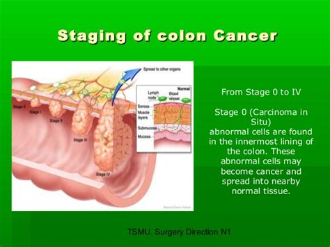 colon cancer stage 0 picture 6