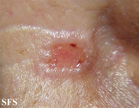 basal skin cancer picture 2