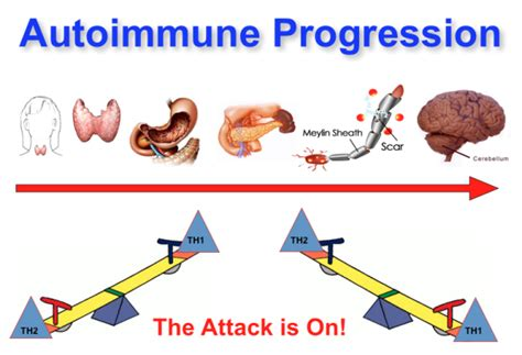 cfs is a th1 immune disease bacterial in picture 12
