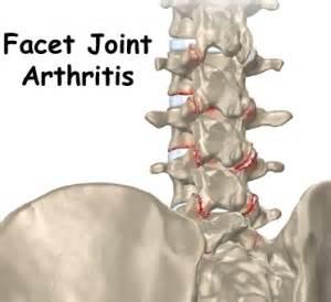 facetal joint disease picture 6