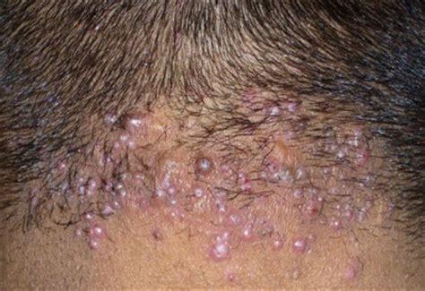 acne neck picture 1