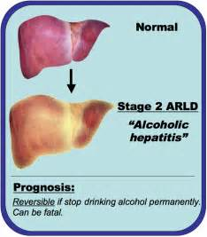 liver dying symptoms last phase alcoholism picture 11