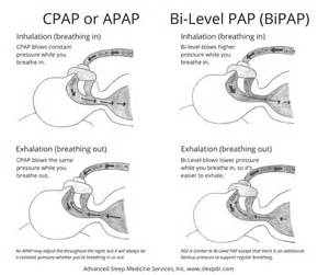 bi-pap machine used in sleep apnea picture 9