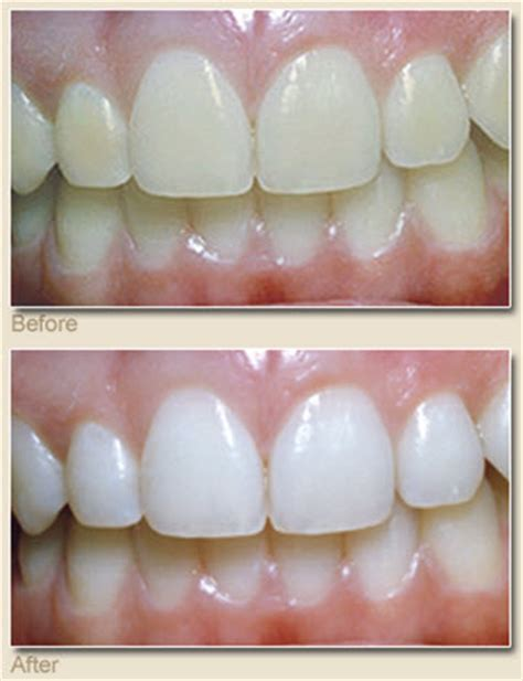 teeth whitening arlington picture 1
