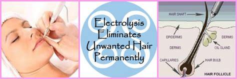 electrolysis hair removal picture 18