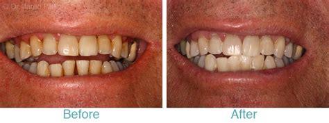 white teeth miami picture 7