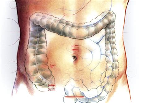 colon surgery proceedure picture 10