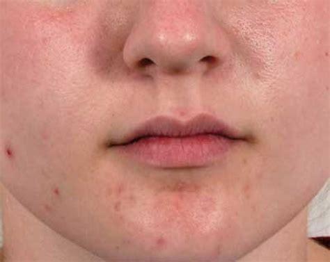pimples picture 6
