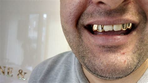 gold silver teeth picture 9
