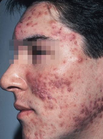 cure for red spots from acne picture 2
