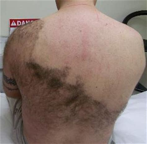 genital hair removal pictures picture 1