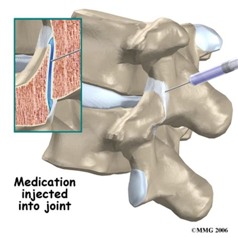 facet joint injection picture 13