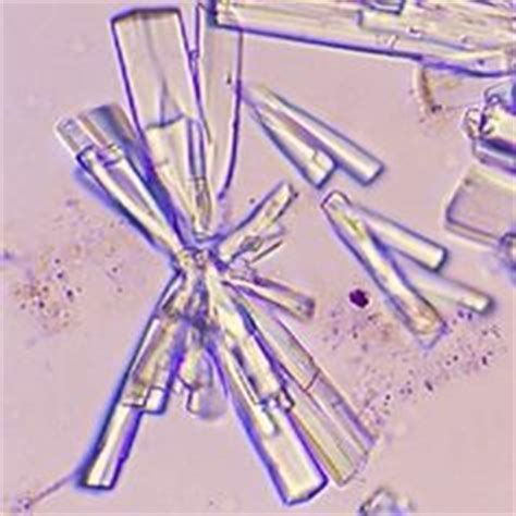 crystals in s bladder picture 15