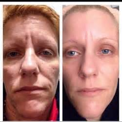 rejuva skin care reviews by real people picture 6