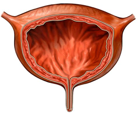 can your bladder rupture naturally picture 18