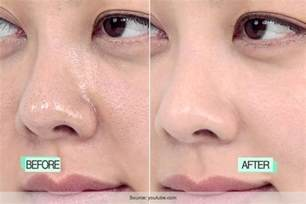 to clear pores picture 10