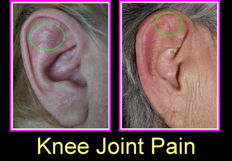 knee joint pain treatment nonsurgical picture 13