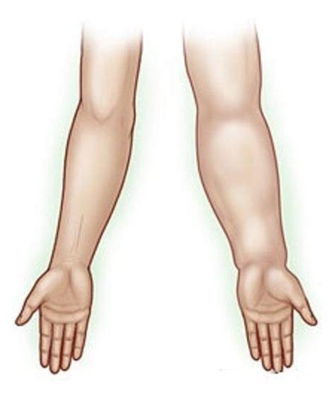 swollen lymph nodes after surgery? picture 3