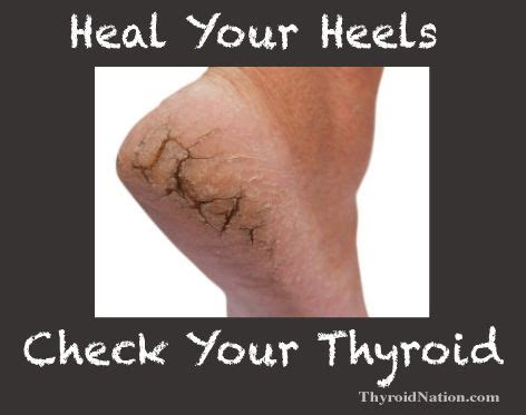 autoimmune thyroid and armpit pain picture 13