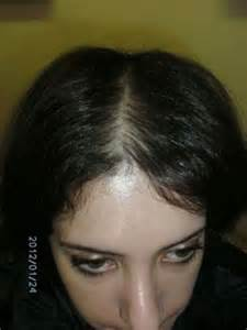 hair loss after bacteria menengitis picture 7