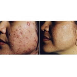 acne mark laser treatment picture 10