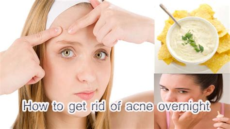 how to get rid of zits and acne picture 8