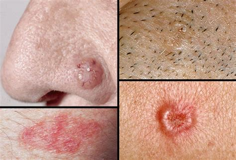 pictures of skin cancer lesions picture 10