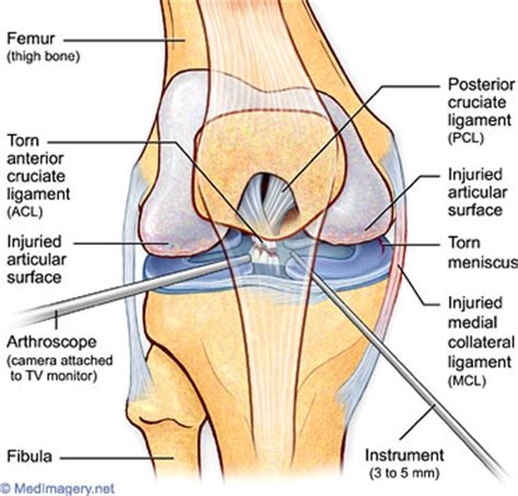 knee and shoulder joint pain, sarcoidosis picture 5
