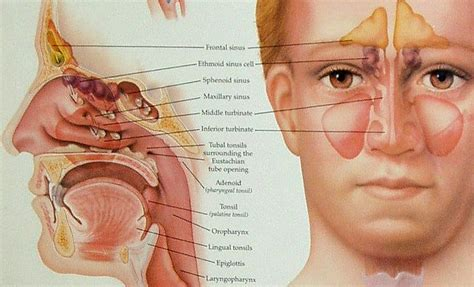 does sinus infection cause face and teeth pain picture 7