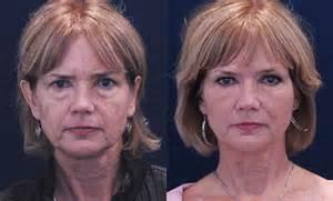 procedures for sagging skin under eyes picture 7