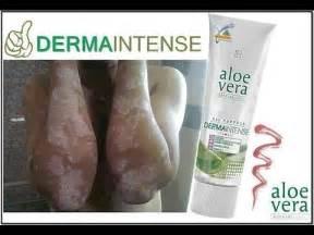 aloe vera vitiligo tedavisi picture 5