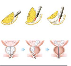 Removal of the prostate gland picture 7