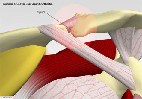 arthritis of the ac joint of the shoulder picture 13