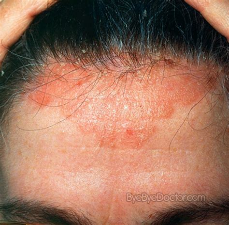hair loss yeast infection picture 2