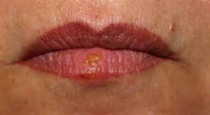 herpes on lips picture 6