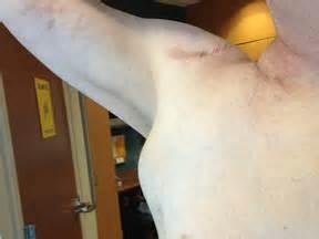 lymphocytic thyroiditis armpit lymph nodes picture 3