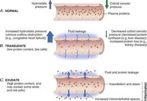 venous leak syndrome picture 6