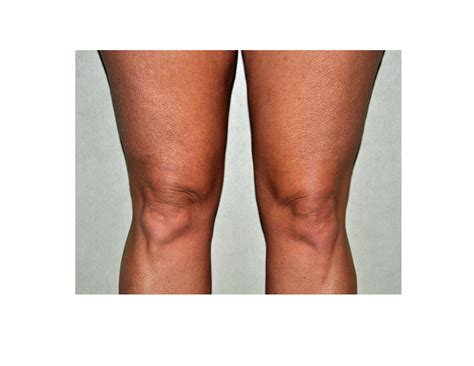 cellulite before picture 9