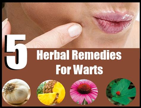 natural remedy for wart removal on lip picture 3