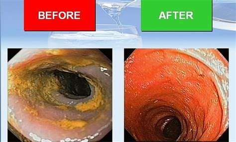 colon cleansing results picture 1