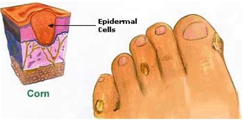 nucleated callus treatment picture 6