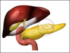 cysts on pancreas liver and stomach picture 15