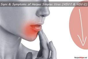 symptoms of oral herpes picture 17