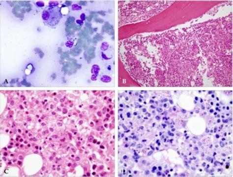 yeast in bone marrow picture 7